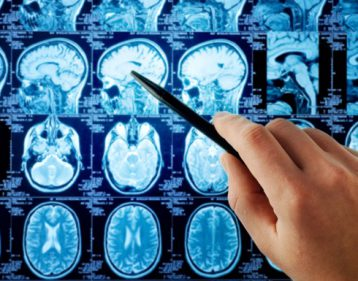 brain-scans