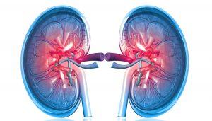 Kidney Cancer Intervention