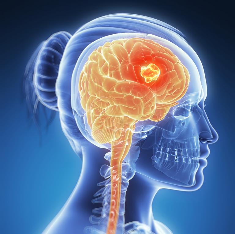 Brain Cancer Awareness Month 768x764 - 양의학, 과학 아닌 환상 34 - 블루투스, 핸드폰, 5G, WiFi, 뇌암