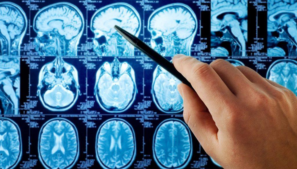 Brain Cancer Treatment alternatives