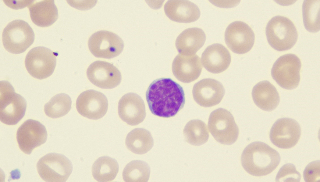Hodgkin's and Non-Hodgkin's Lymphoma