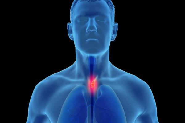 Esophageal Cancer Awareness