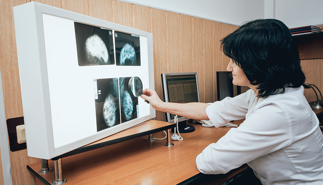 Mastectomy 101