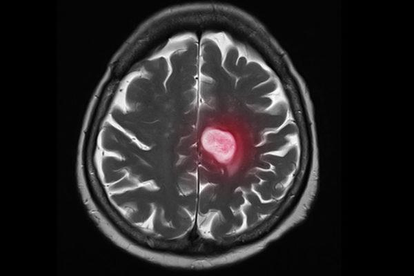 metastasis breast cancer brain cancer