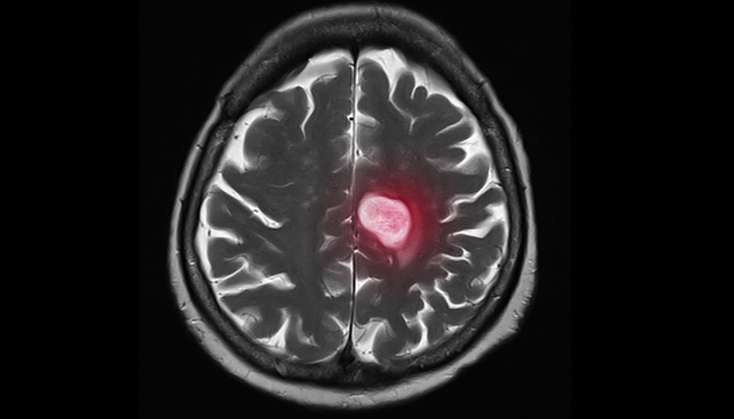 metastasis breast cancer brain cancer