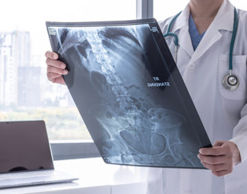 Esophageal Cancer Facts (X-ray)