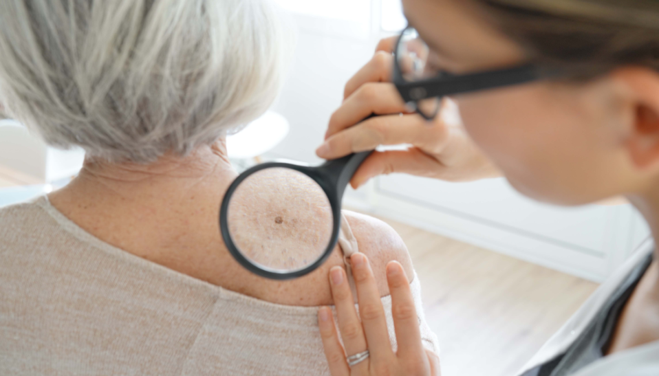 melanoma skin cancer